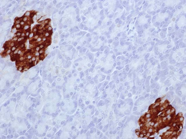 60-0039 61-0039 Ms x Insulin stained pancreas