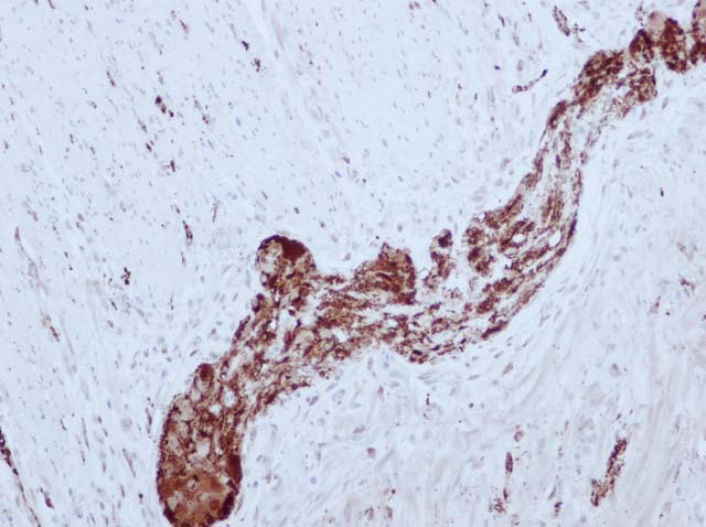 60-0131 61-0131 Ms x NSE stained colon cancer